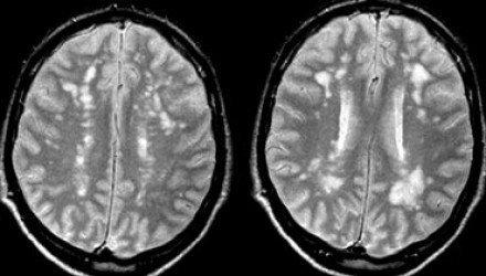 lacunar stroke MRI
