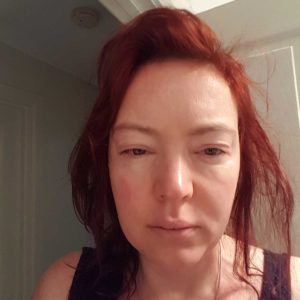 swollen face